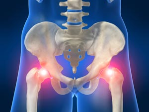 How Chiropractic Can Help Hip Pain