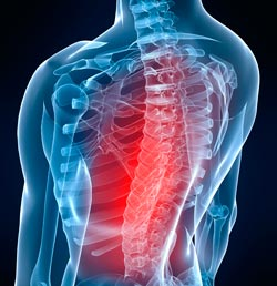 Brittle Bones to Blame for Back Pain