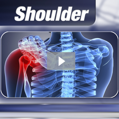 Frozen Shoulder Syndrome Video Thumbnail