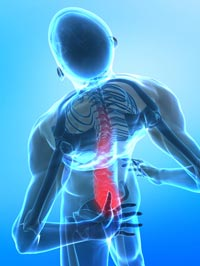 Back Pain May Make Knee Problems Worse, Study Suggests