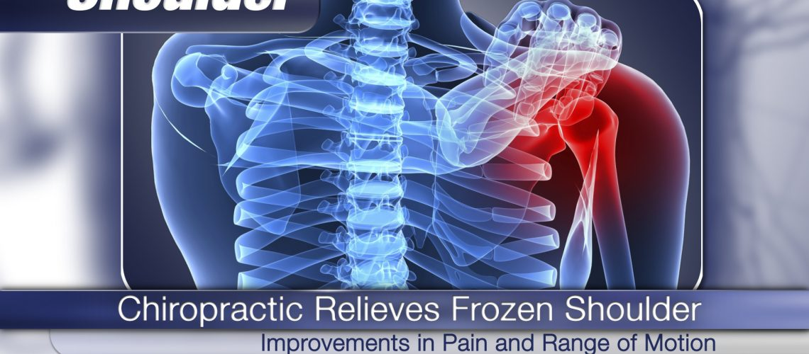 VIDEO: ChiroNexus - Chiropractic Relieves Frozen Shoulder Syndrome - Thumbnail