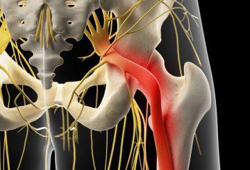 Causes of sciatica pain