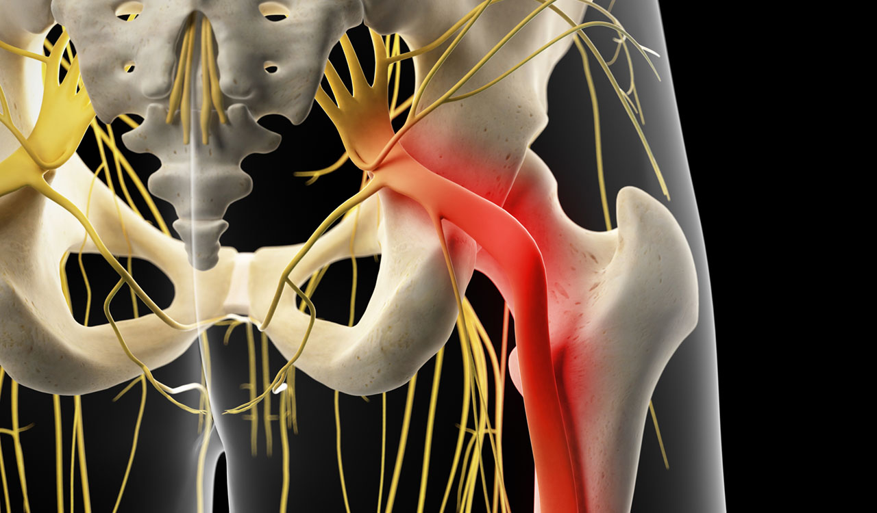 9 Risk Factors for Developing Sciatica